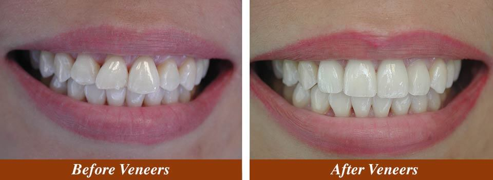 Veneer Case Before and After
