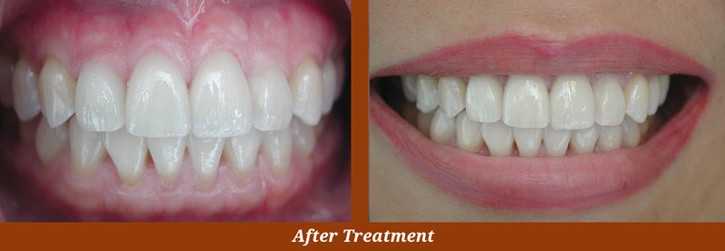 veneer cases in arlington va
