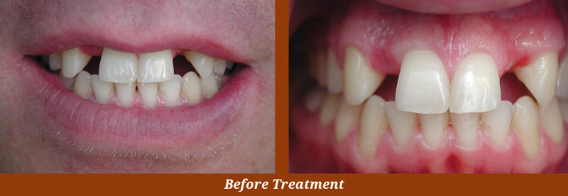 implant cases in centreville, va