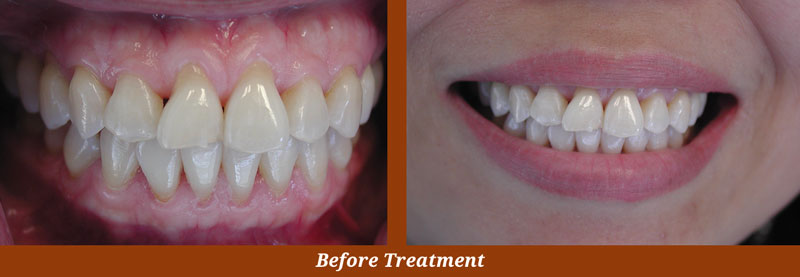 veneer cases in centreville va