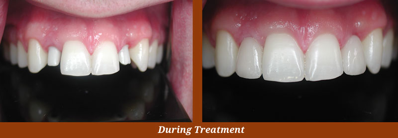 implant cases in arlington, va